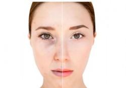 Pigmentflecken Gesicht entfernen, Pigmentflecken Gesicht, Hautaufhellung in der Klinik
