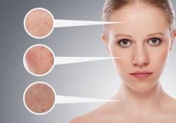 Pigmentstörungen, Mittel gegen Pigmentstörungen